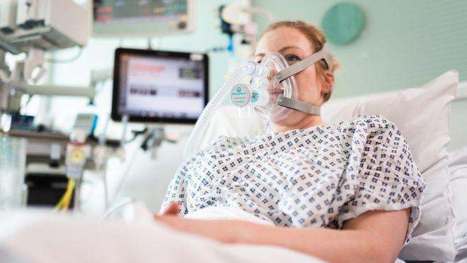 У Лондоні вчені та конструктори Mercedes з «Формули-1» створили апарат для підтримки потрібного тиску в легенях