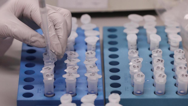 В Україні 1251 випадок коронавірусу, 25 пацієнтів одужали